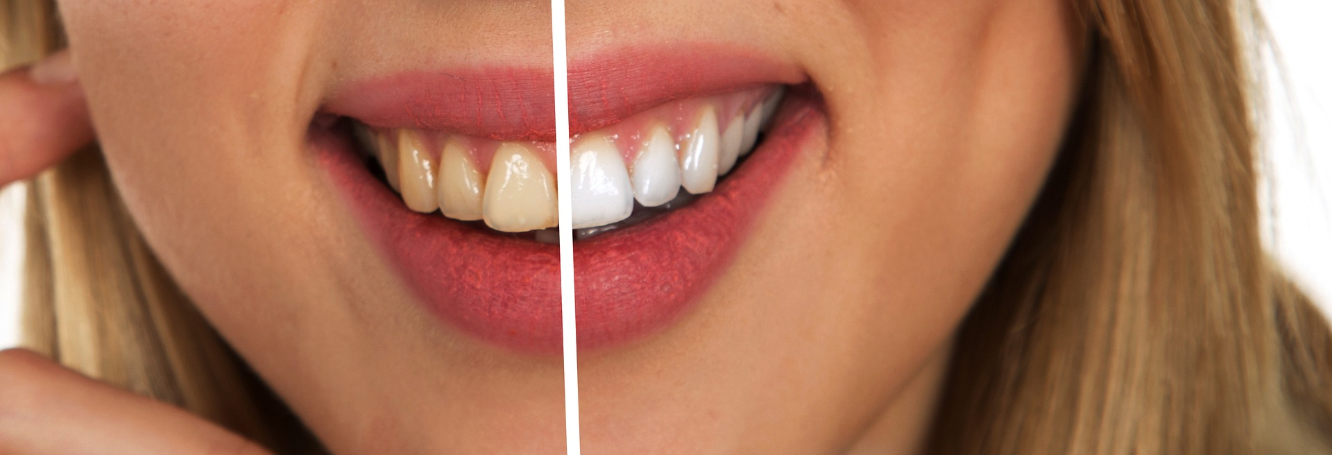 cream coloured and white coloured teeth